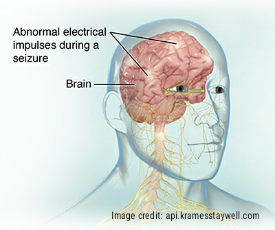 Abnormal electrical impulses in the brain