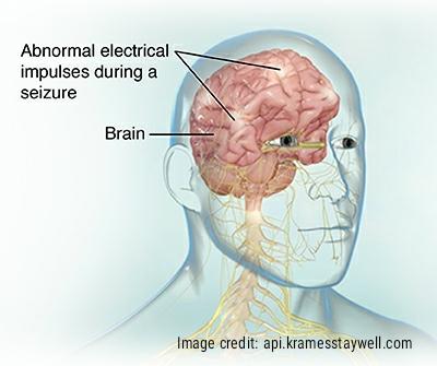 Abnormal electrical impulses in the brain