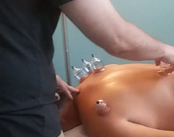 Neurologist Dr. Tim Allen gets cupped (myofascial massage) by acupuncturist David Gorski